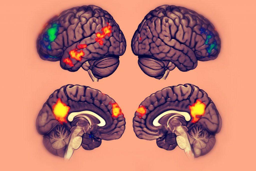 الجسم العقلي من ( 23 إلى 28 عامًا ):