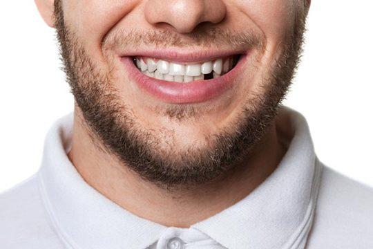 أحلام حول فقدان الأسنان